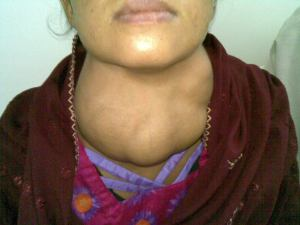 Goiter or swollen Thyroid gland.