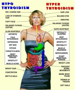 Hyper- and Hypo- thyroid states: comparison of symptoms.